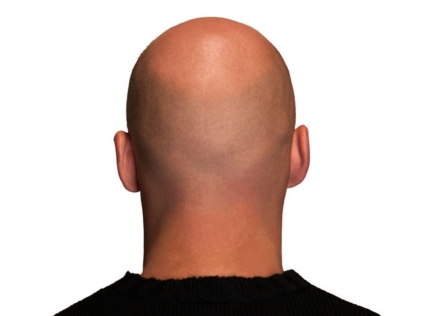 Hair Loss Bald